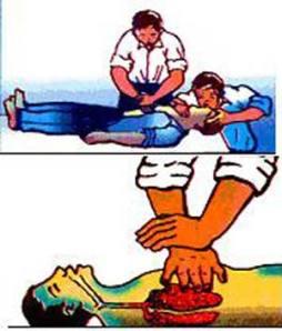 Sơ cứu người bị điện giật